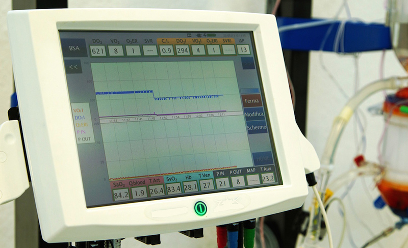 Electronic monitoring system for operating rooms